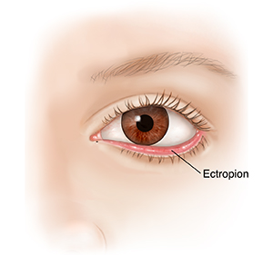 Front view of eye showing drooping lower eyelid and ectropion.