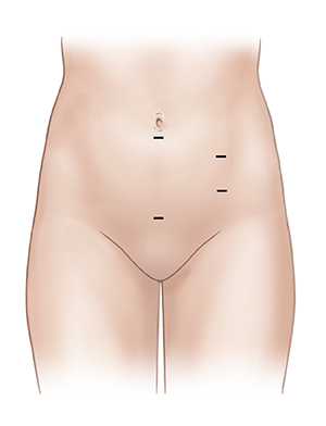 Front view of female abdomen showing laparoscopic incision sites in pelvic area.