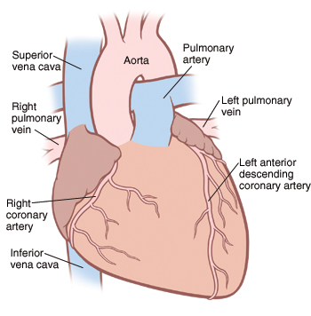 Front view of heart, great vessels, and coronary arteries.