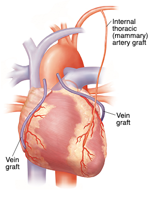 Front view of heart with three bypass grafts.