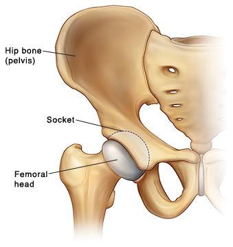 Front view of hip bone (pelvis) showing femoral head of thighbone fitting in socket in pelvis.