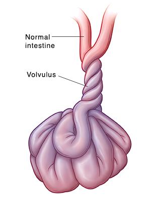Front view of intestine twisted around itself (volvulus).
