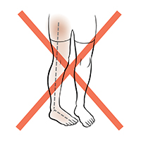 Front view of legs showing one foot and leg rotated towards the middle. Red X indicates not to do this.