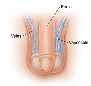 Front view of male genitals showing penis, veins, and varicocele.