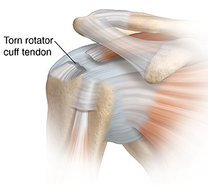 Front view of shoulder joint showing tear in rotator cuff tendon.