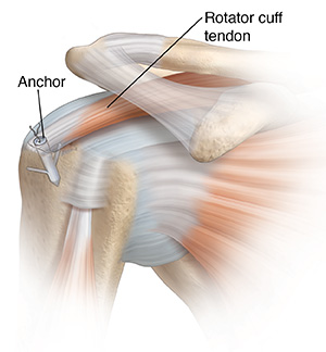 Front view of shoulder joint with anchor repairing torn tendon.