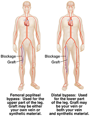 Front view of two male figures showing distal bypass graft and femoral popliteal bypass.