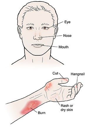 Hand and forearm showing hangnails, cut, burn, rash, and dry skin. Front view of face.