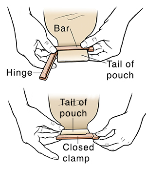 Hands closing clip on tail of ostomy pouch.
