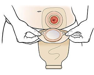 Hands placing ostomy pouch over stoma.