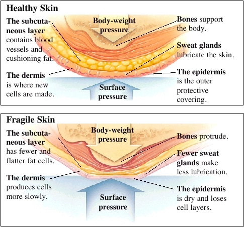 Healthy skin has a subcutaneous layer that contains blood vessels and cushioning fat. The dermis is where new cells are made. Bones support the body. Sweat glands lubricate the skin. The epidermis is the outer protective covering. Surface pressure is balaned by body weight pressure. In fragile skin, the subcutaneous layer has fewer and flatter fat cells. Bones protrude. Fewer sweat glands make less lubrication. The epidermis is dry and loses cell layers. The dermis produces cells more slowly. Surface pressure can result in sores.