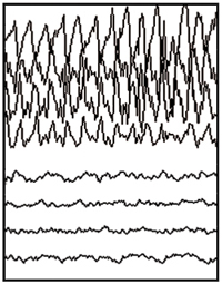 Partial seizure EEG tracing.