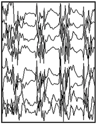 Generalized seizure EEG tracing.
