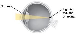 Cross section of eye showing light focusing on retina.