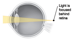 Cross section of eye showing light focusing behind retina.