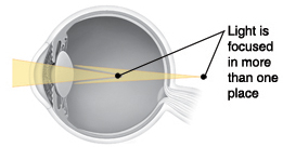Cross section of eye showing light focusing in more than one place.