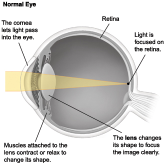 Cross section of eye showing light focusing on retina normally.