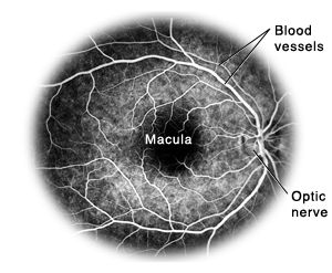 Flourescein angiogram showing blood vessels, macula, and optic nerve.
