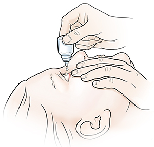 Woman leaning head back and pulling gently down on lower eyelid. Other hand is holding eyedrops bottle over eye.