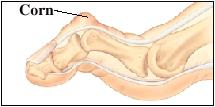 Image of rigid hammertoe