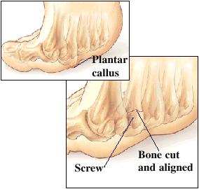Image of plantar callus