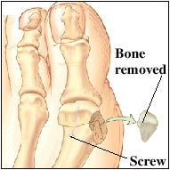 Image of the big toe joint with a piece of bone removed and a scew