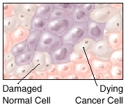 Image showing a damaged normal cell and a dying cancer cell.