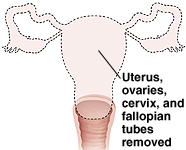 Front view of hysterectomy showing uterus, ovaries, cervix, and fallopian tubes removed.