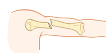 Upper arm bone showing displaced fracture.