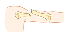 Upper arm bone showing open fracture.