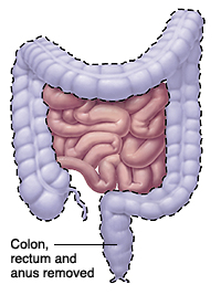 Entire colon and rectum are removed.