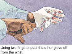 Second step in removing gloves safely.