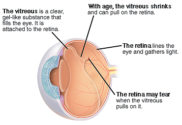 Three-quarter view of cross-sectioned eye showing shrinking vitreous pulling on retina.