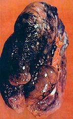 Smoker's lung.