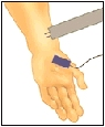 Image of hand/arm with electrode attached.