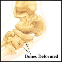 Image of foot bones showing deformed bones