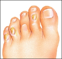 Corns on the toes of the foot