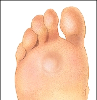 Calluse on bottom of foot
