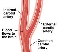 Healthy carotid artery.