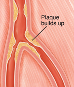 Cross section of peripheral artery narrowed by plaque buildup.