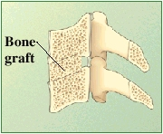 Cross section of cervical vertebrae showing bone graft between vertebrae.