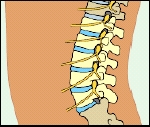 Side view of lower back showing lumbar spine.