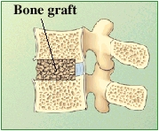 Cross section of lumbar vertebrae showing bone graft between vertebrae.