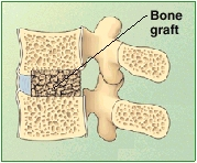 The image shows bone graft.