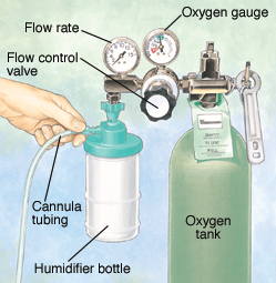 Parts of an oxygen tank.