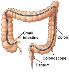 Front view of colon showing scope inserted through anus into entire colon.