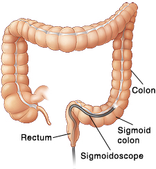 Front view of colon showing scope inserted through anus into sigmoid colon.