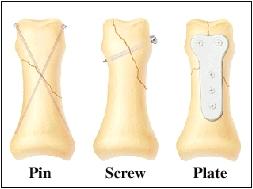 Image of bone
