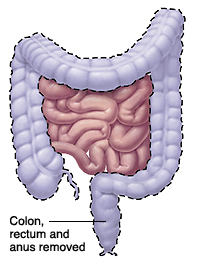 Image of the intestines with colon, rectum and anus highlighted to show what portion is removed.