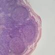 ../../images/ss_lymphoma.jpg